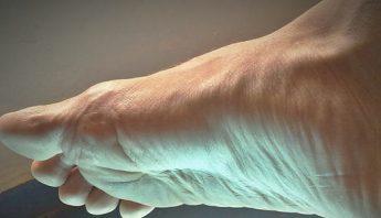 deformaciones en dedos de los pies