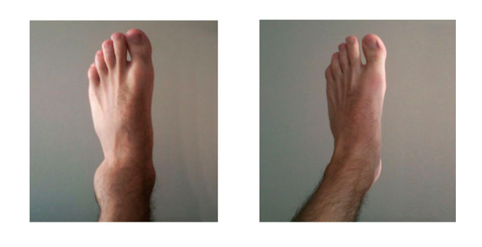 recuperación de esguince de tobillo
